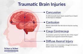 Insurance Companies & Traumatic Brain Injuries